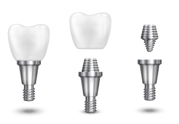 So sodobne zobozdravstvene storitve cenovno ugodne?